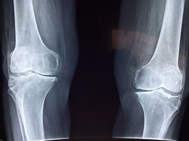 Hvornår har man brug for en røntgenundersøgelse?