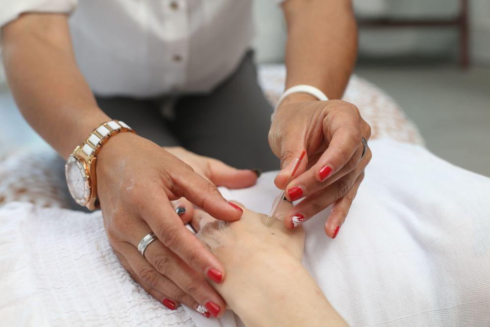 Hjælp til smertelindring med akupunktur